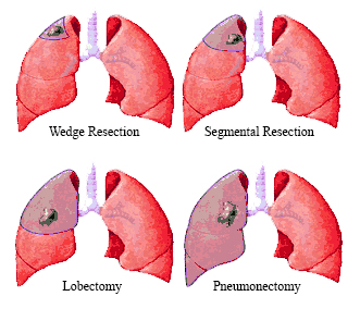 Lung Wedge revised